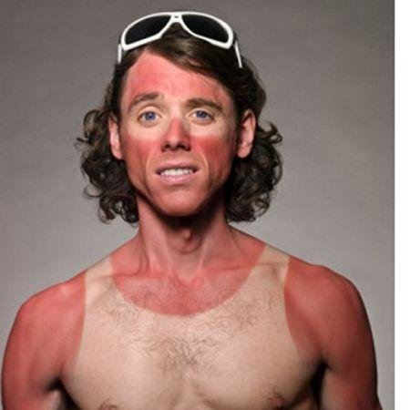 Holiday fails, Sunburn fails, Things you only do on holiday