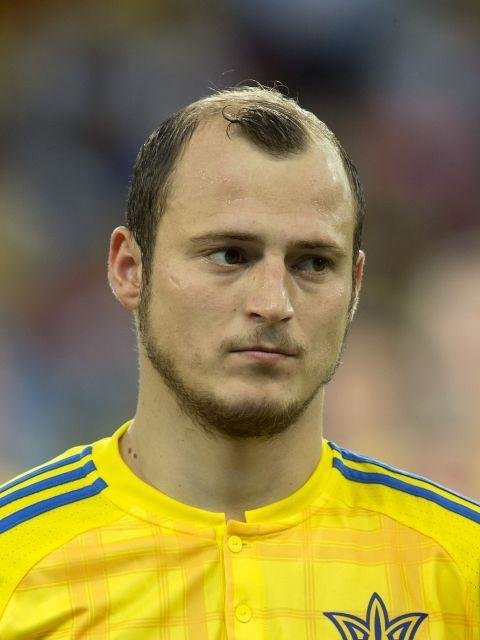 Roman Zozulya (Ukraine)  -  With a shoddy little island of hair clinging desperately to his head, Ukraine's Roman Zozulya is suffering from a chronic case of the 'Prince William' with his current cut.
