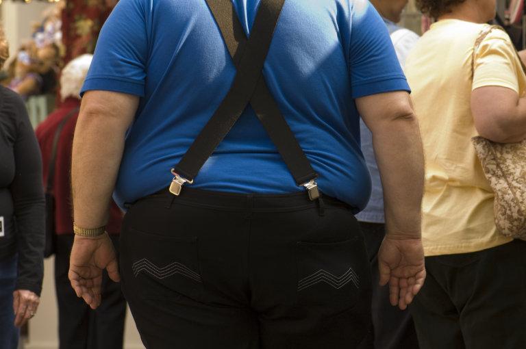 Obeseity, Health, Fat, Fatty